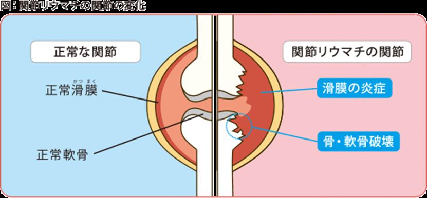 関節リウマチの関節の変化